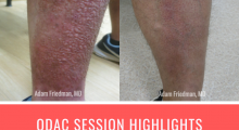 ODAC Session Highlights - Practical Pearls for Diagnosing and treating pruritus