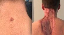 Image of melanoma and after surgeries