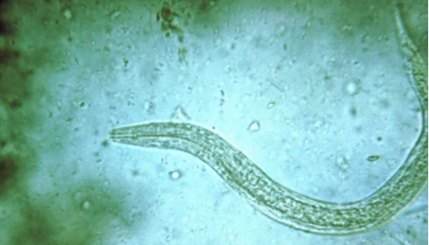 Hookworm Vaccine Trials Begin At Gw The Department Of