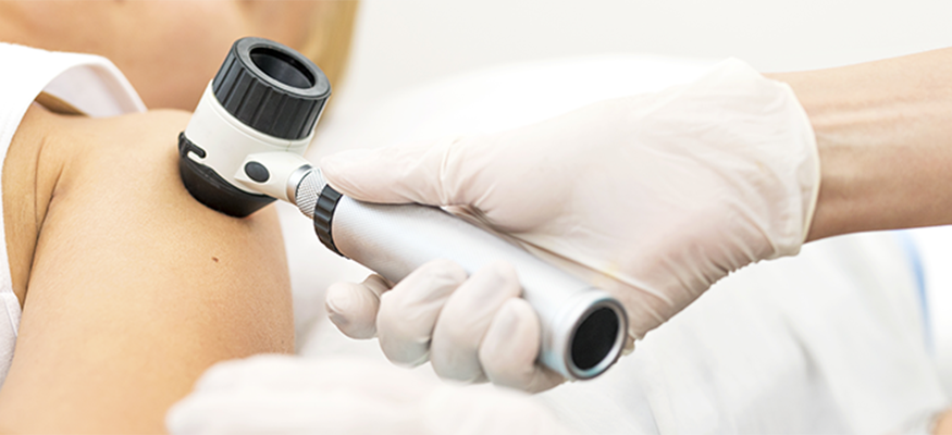 The Department of Dermatology hosted a free skin cancer screening for Skin Cancer Awareness Month