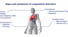 Signs and symptoms of coagulation disorders: Mucocutaneous 1: • Gum Bleeds • Excessive bleeding after dental procedures; Craniofacial 1 : • Intracranial hemorrhage • Epistaxis; Subcutaneous 1,2 : • Petechia • Bruising; Genitourinary 1: • Menorrhagia • Hem